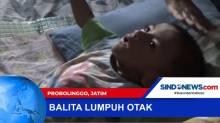 Divonis Lumpuh Otak Sejak Usia 6 Bulan, Balita di Probolinggo akan Jalani Fisioterapi