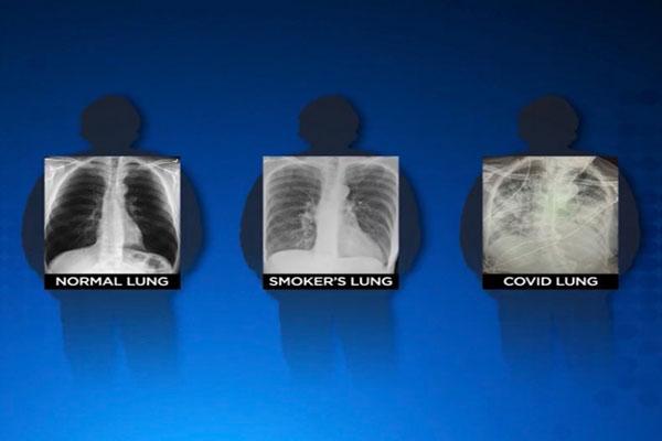 Kondisi Paru-paru Penderita Covid-19 Bisa Lebih Buruk dari Perokok Berat