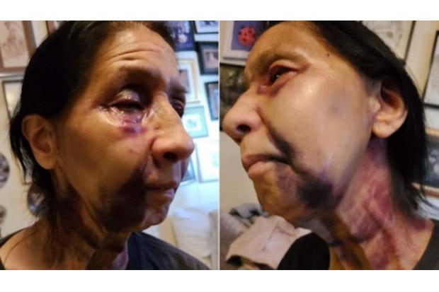 Disangka Orang Asia, Nenek 70 Tahun Dipukuli dengan Brutal di Bus